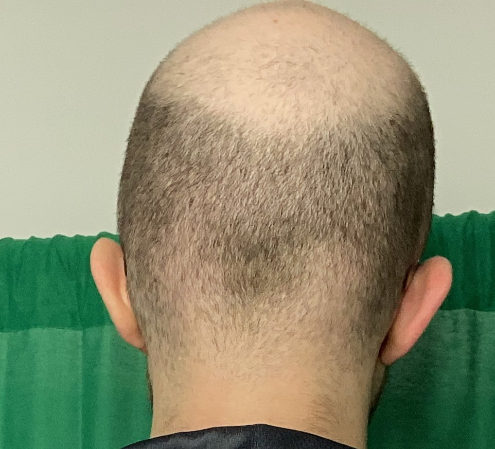 ESAM - BRUH LOOK AT THE TOP OF MY HEAD, IT'S ROUGH FOR YA BOY