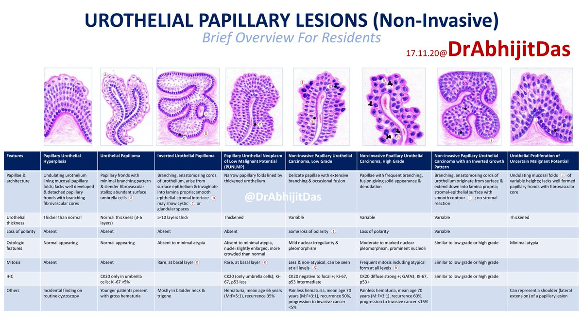 inverted urothelial papilloma p53