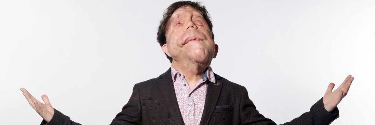 Very excited for tomorrow's #WalshWeekly lineup:   @Adam_Pearson on #Disability, #UnderTheSkin and #Wrestling   @Cultaholic's @LessDefined on #VideoEditing and takes the #CultaholicMusicQuiz   @DavidLloydRADIO on all things #Radio   Plus #DJRichelle too.   @RadioLaB971fm 12 - 3pm