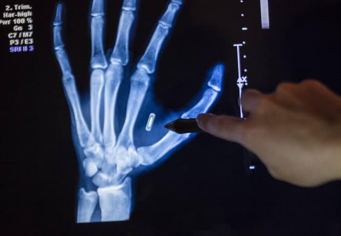 @fukashigi22 通信範囲が狭いマイクロチップインプラントは、表面に最も近い筋膜の下に設置する必要があります。 大きな針で皮膚を刺す必要があるため、頭蓋骨の奥深くにあるインプラントを読み取ることはほとんど不可能です。 単純なX線で、インプラントが存在する場合はそれが明らかになります。#フェイクニュース