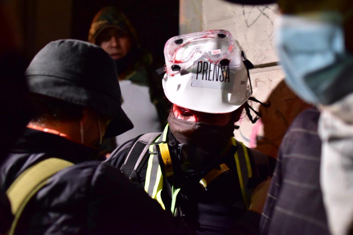 test Twitter Media - #AHORA Dos periodistas heridos por aparentes piedras. Fotos La Hora/Christian Gutiérrez https://t.co/TLlIcsK3y7