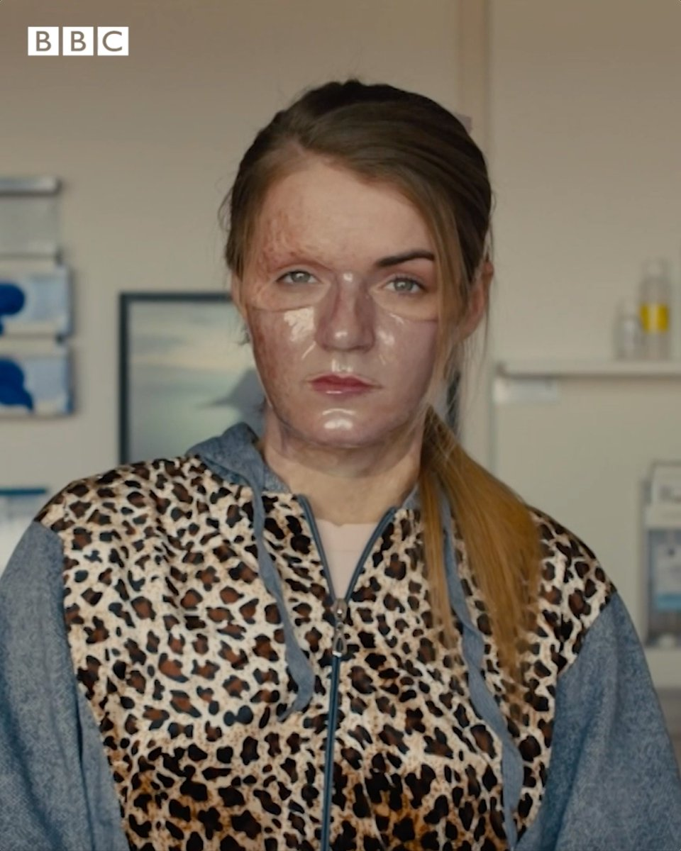 Celebrating courage in the face of adversity. Dirty God tells the story of a young woman, played by real-life burns survivor Vicky Knight, who is targeted in an acid attack, but determined not to let her scars define her. #DirtyGod @VickyKnight95