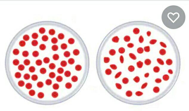 #थॅलेसेमिआ #भाग - २  #अ)अल्फा थॅलसेमिआ :- या प्रकारात रक्तातील हिमोग्लोबिन मध्ये अल्फा प्रोटिन आढळत नाही,त्यामुळे हिमोग्लोबिन आणि लालरक्तपेशी यांचा आकार लहान आणि अनियमित आढळून येतो.  #ब) बिटा थॅलसेमिआ :- या प्रकारच्या थॅलसेमिआ मध्ये एच,बी आणि लालपेशी कमी आकारात अन लवकर नाश पावतात