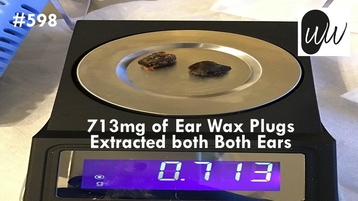 598 - 713mg of Ear Wax Plugs Extracted from Both Ears  via @YouTube #earwax #earwaxremoval #blockedear #blockedears #hearing #hearingloss #audiology #audiologist #audpeeps #earclinic #hearingclinic #microsuction #earmicrosuction