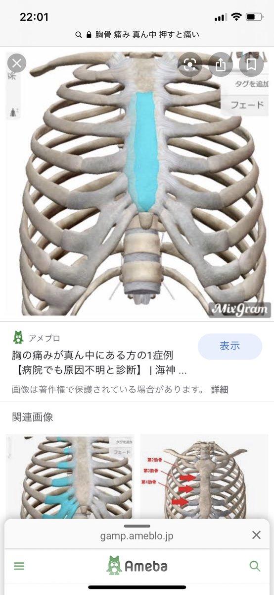 押す と 痛い 胸骨