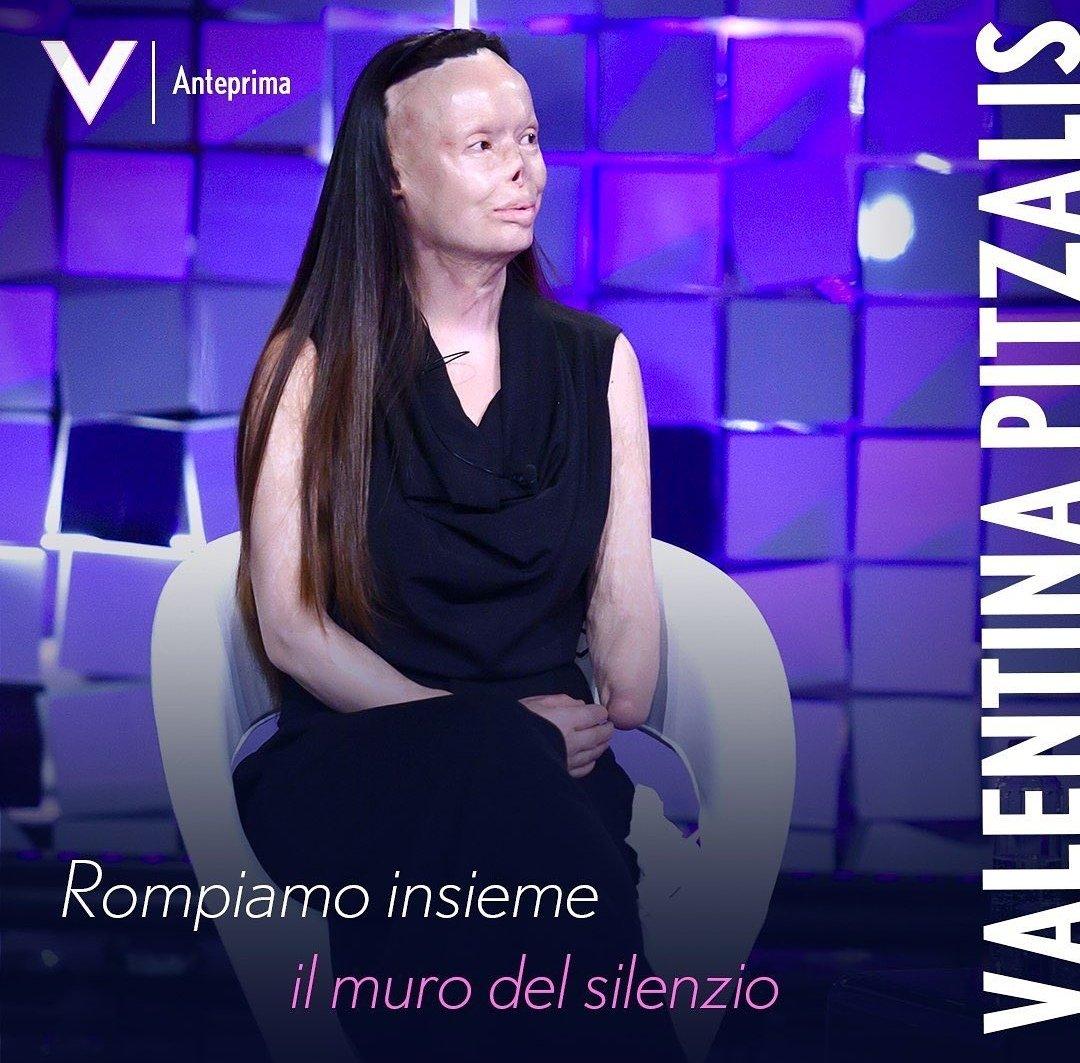 Ho letto su @MediasetPlay le anticipazioni delle interviste di #verissimo e quella di Valentina pitzalis, e devo dire che la storia è allucinante e da far venire i brividi.😭💔  Ha una forza pazzesca! Grazie Silvia per dare spazio a queste donne!  #stopviolenceagainstwomen 🙏 https://t.co/DG2q9rxxYg