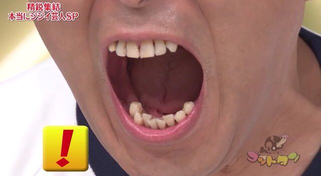 錦鯉の長谷川の結婚歴や子供の名前は?ホスト時代のエピソードや奥歯が8本ないという衝撃の事実www