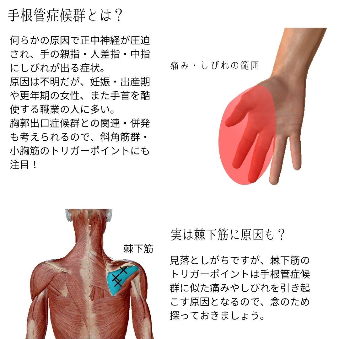 原因 管 手 根 症候群