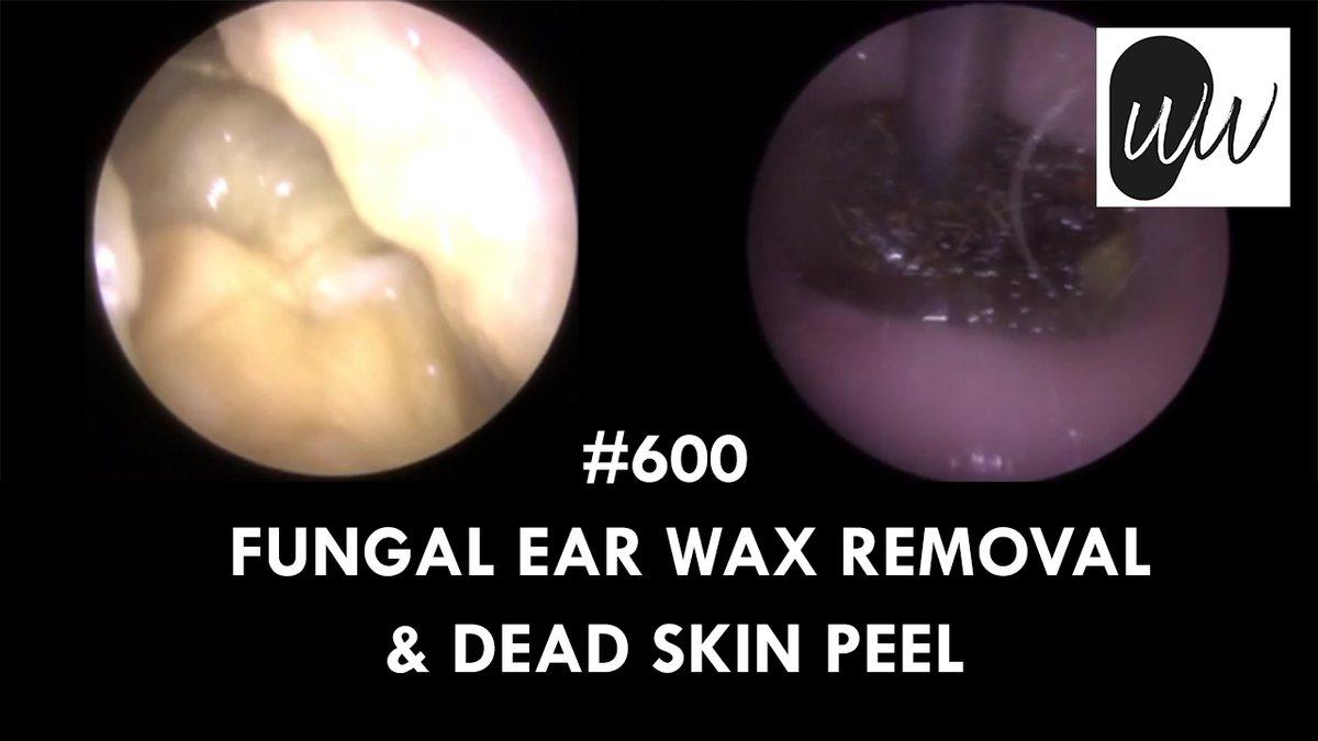 600 - Fungal Ear Wax Removal & Dead Skin Peel  via @YouTube #earwax #earwaxremoval #blockedear #blockedears #hearing #hearingloss #audiology #audiologist #audpeeps #earclinic #hearingclinic #microsuction #earmicrosuction