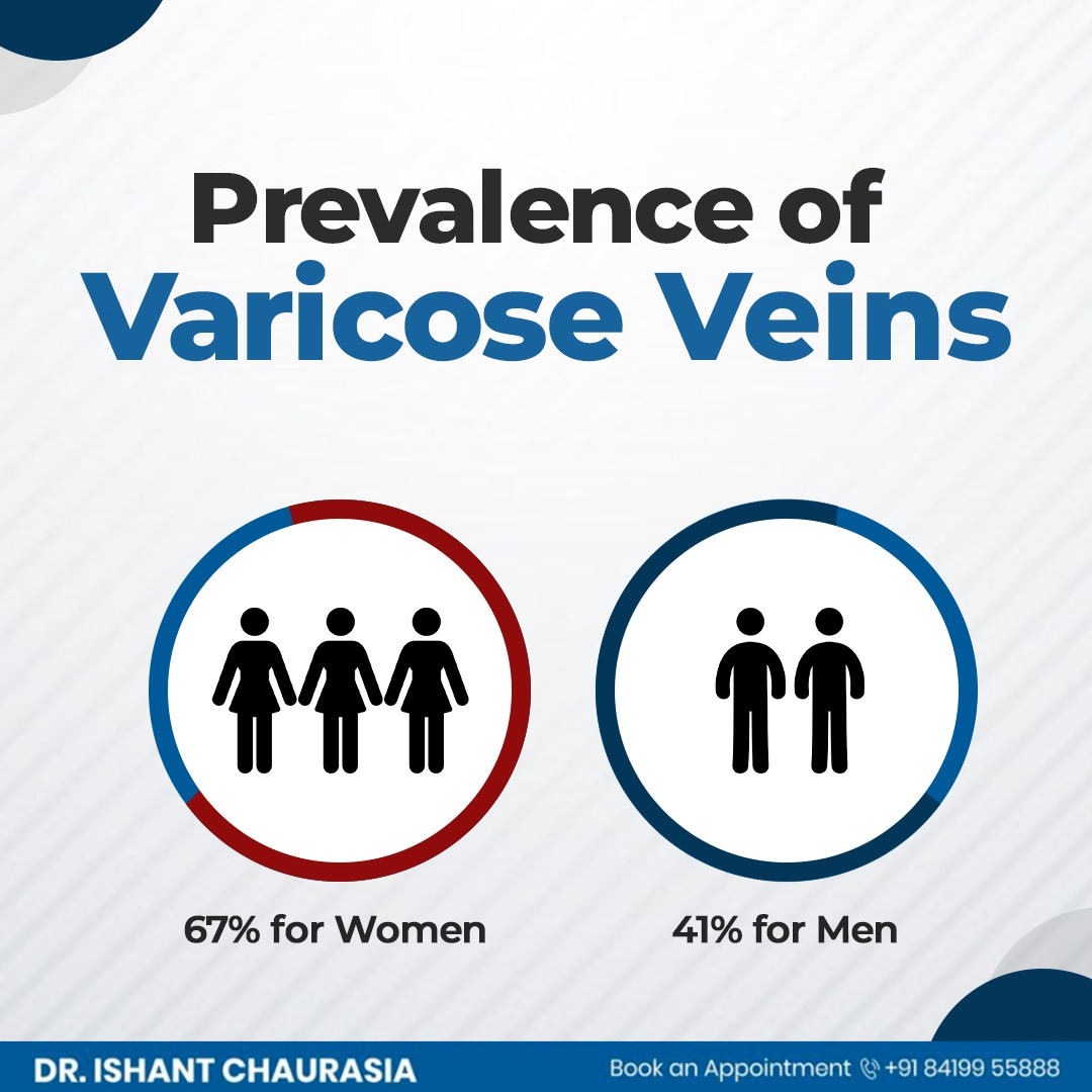 Not just women, men too need to care for the varicose veins. Consult Dr Ishant Chaurasia for surgical treatment of Varicose Veins. contact 8419955888.  #GeneralSurgery #CancerSurgeon #GastrointestinalSurgeon #DrIshantChaurasia #BestGeneralSurgeon #StomachSurgery  #Indore
