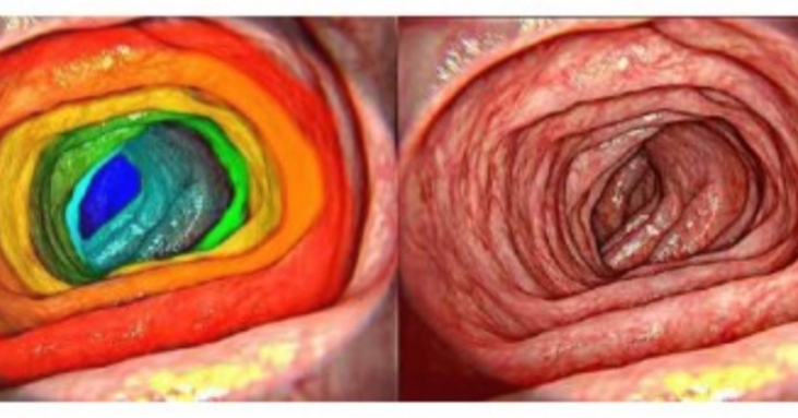How did your last gastroenterological screening go? Do not forget to keep your stomach healthy. How about a different view on your digestive organs? #rainbow #road #into #your #stomach #AI #knowledge #in #your #pocket https://t.co/m7DEEiKy9h