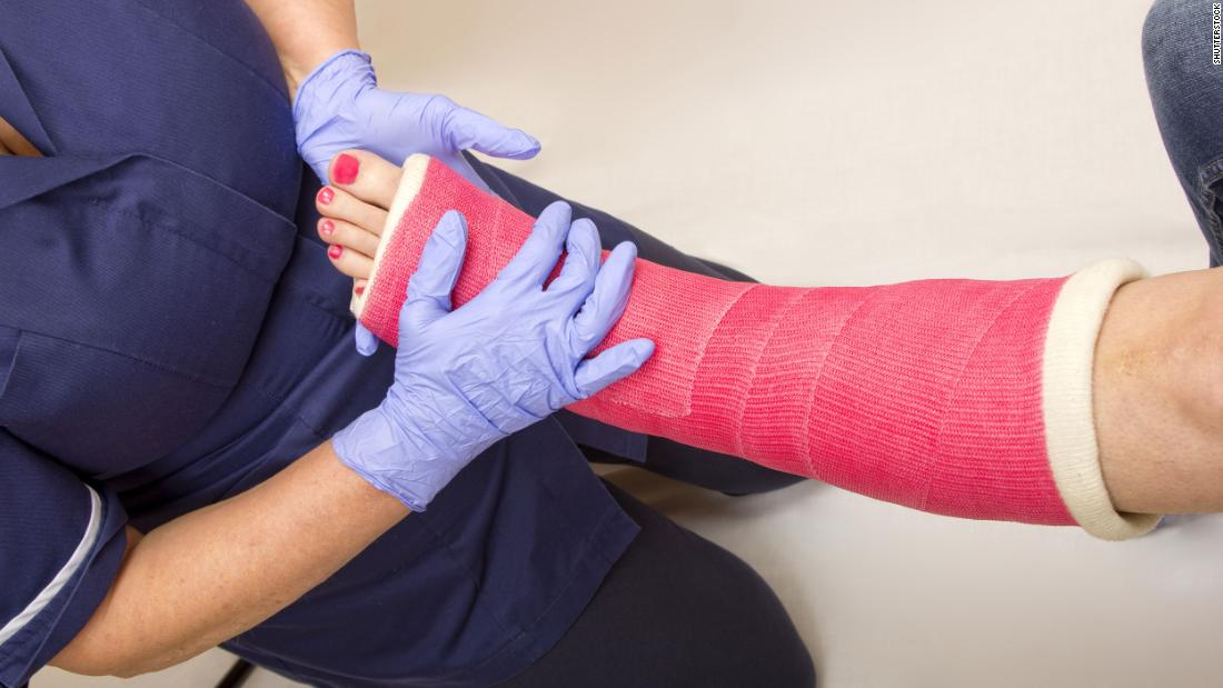 Vegans may be at higher risk for bone fractures, study finds