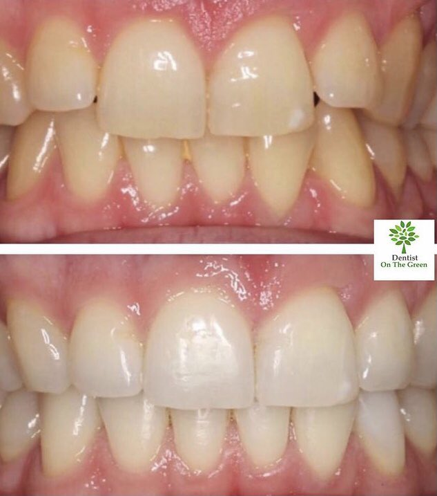 We ❤️ Wednesdays, we're half way through the #week & you can also get #your #teeth #whitened for #LESS with our #WHITER #WEDNESDAY #offer! After nearly a month in #lockdown it's the #perfect time to update your look with a sparkling smile  -save 20% off our #whitening treatments https://t.co/gnSb1Jc8oQ