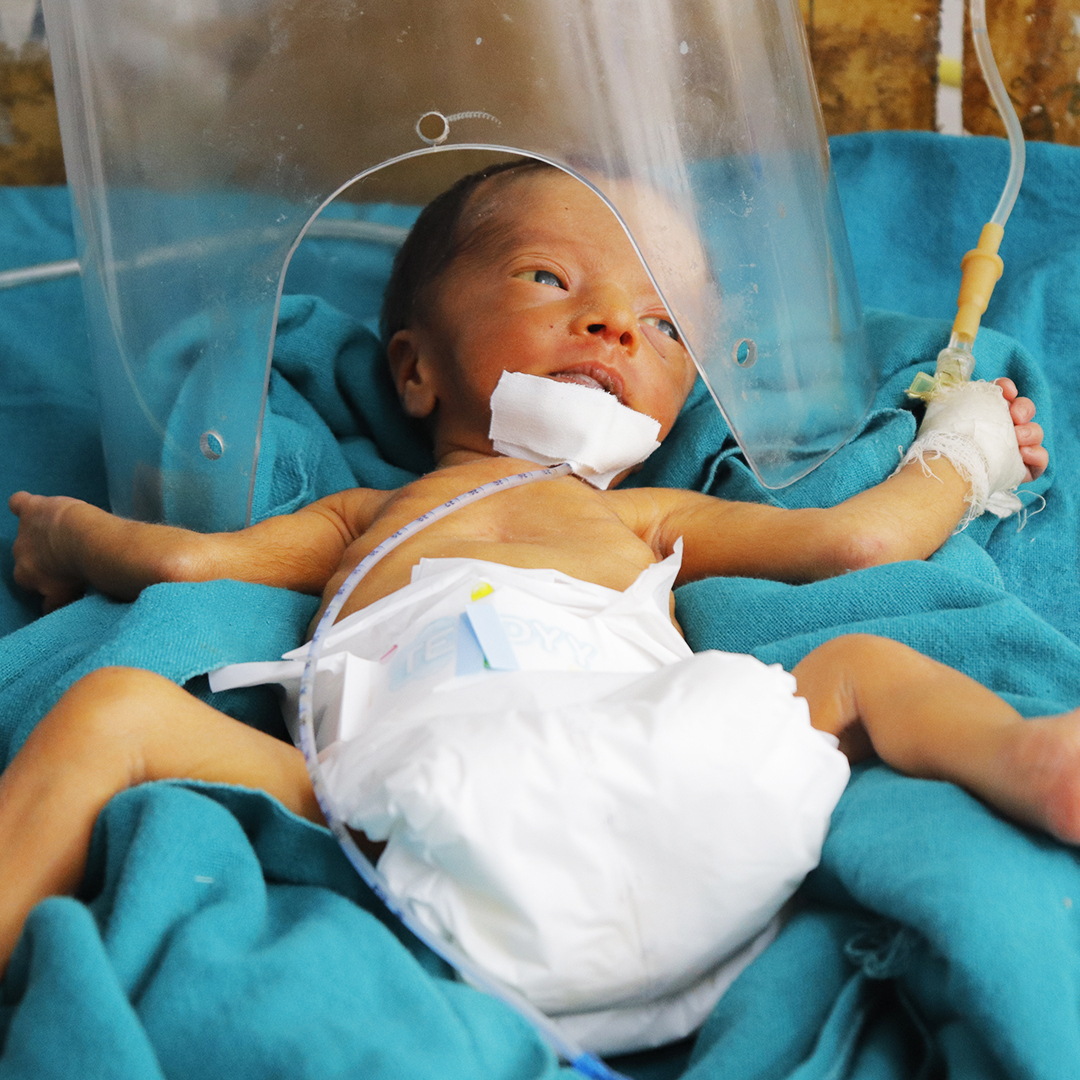 """""""My baby is dying due to premature birth. I haven't even held him in my arms yet. His condition is miserable, but there is nothing I can do. I beg God to save my little angel's life.""""  Please help him here:"""