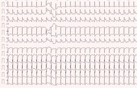 Durante el traslado el paciente recupera consciencia (SCG 15), TA 185/123mmHg, FC 125 lpm, que posteriormente disminuye de nuevo a SCG 3, para proteger vía aérea se procede a IOT con previa sedoanalgesia con rocuronio y midazolam, se realiza ECG de 12 derivaciones. https://t.co/bKmQhpsNi1