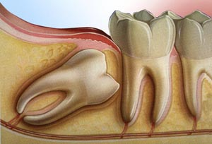 Dental Tips: Why remove wisdom teeth? Extraction of third molars can protect the overall health of the mouth. If they need to be removed, it should be considered before age 20 when generally fewer complications occur. Learn more at . #wednesdaywisdom