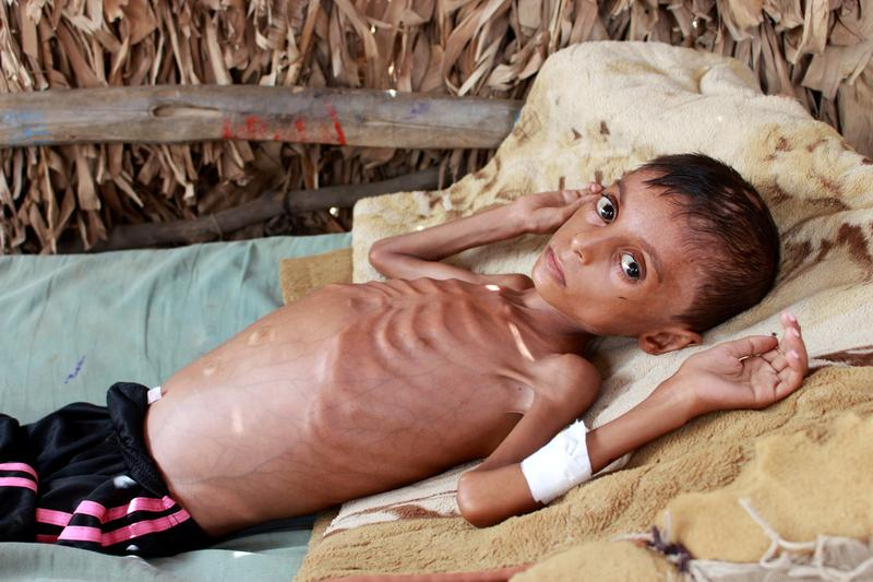 Yemeni boy fights malnutrition as hunger stalks nation's children https://t.co/G7xaFGmazh https://t.co/8v8TVb10pb