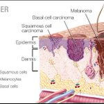 Image for the Tweet beginning: In this #MayoClinicQandA podcast, Dr.