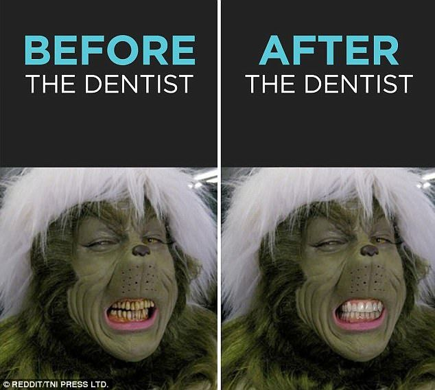Love it!  Make those grinch-y teeth healthy and beautiful with dentistry!  #Dentistry #Grinch #Before #After #Teeth