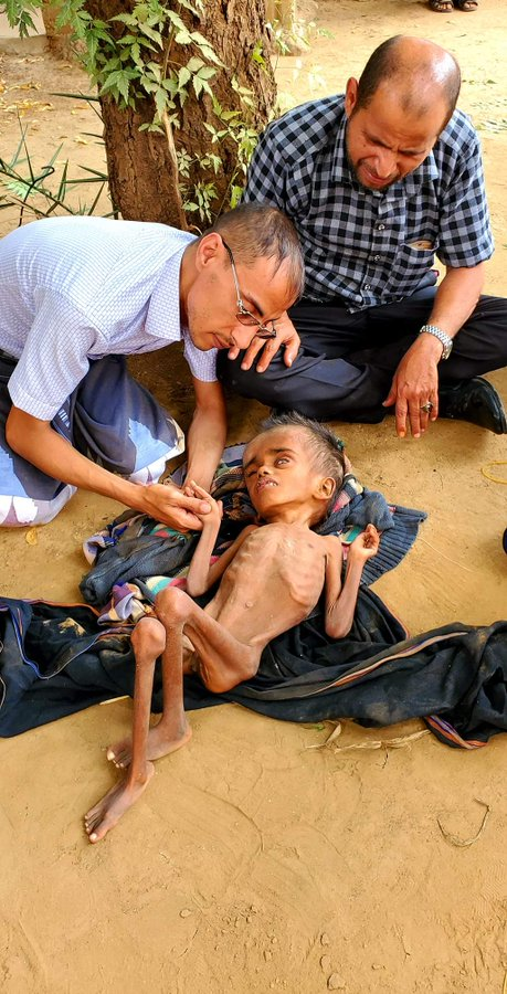 @BillClinton Life in the midst of death, this photo reflects the situation in # Yemen   Childhood, fatigue, and an insatiable war of killing   Continuous wars, in a country that the world considers an outlet for the conflict of opponents and a place to review how geography revenge history!