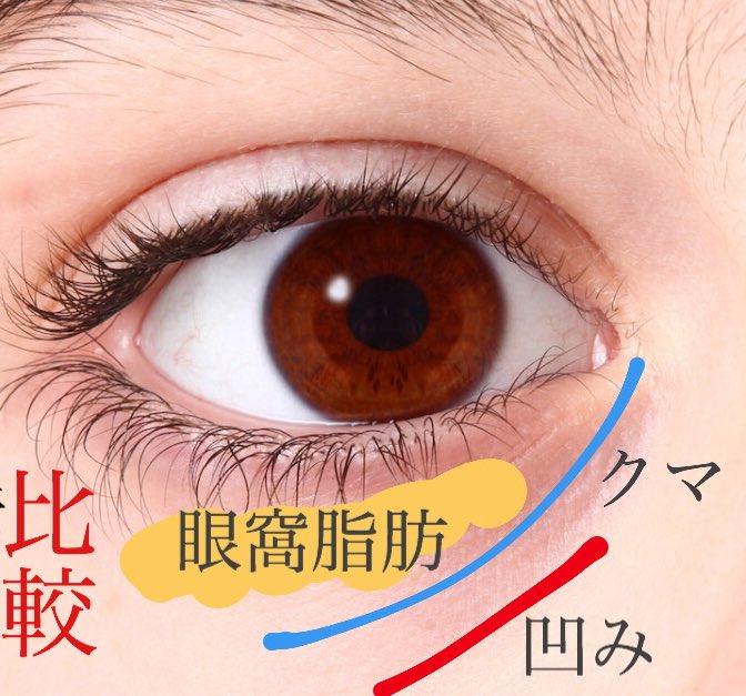 目の下 の 膨らみ