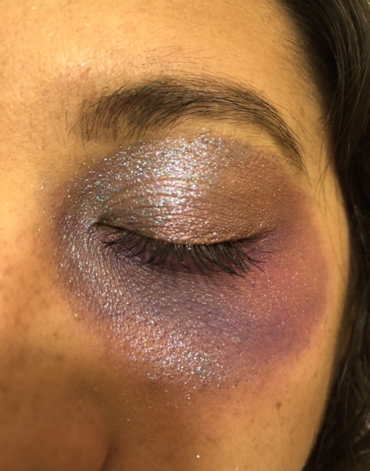 Still obsessed with how my bruised eye came out. It was reflective. Sometimes it would look silver and purple other times it looked blue! I wanted to illustrate a more bruised look bc of trauma and the healing process. 🤍