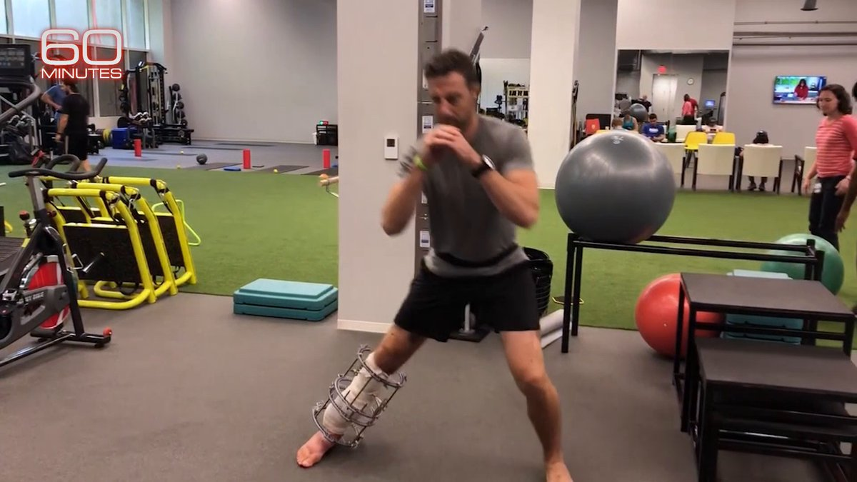After a severe leg fracture and subsequent life-threatening infection, Washington QB Alex Smith re-learned to walk, run, and eventually move like a quarterback again with the help of thousands of hours of PT, various braces and orthotics.