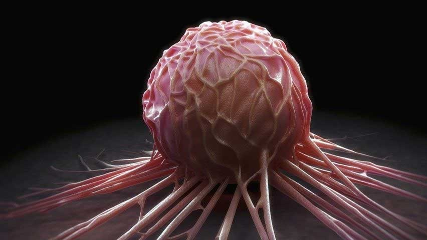 #Cancer cells can hibernate to avoid chemotherapy #Health https://t.co/gxpr25z1ED https://t.co/DHCZFPaBa1