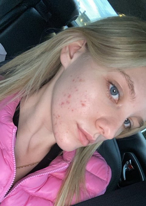 1 pic. Idc, I don't want to hide my acne anymore. Yes I suffer from cystic acne, that gets so painful