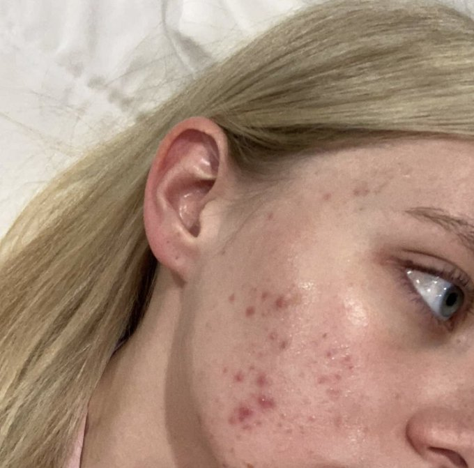 2 pic. Idc, I don't want to hide my acne anymore. Yes I suffer from cystic acne, that gets so painful