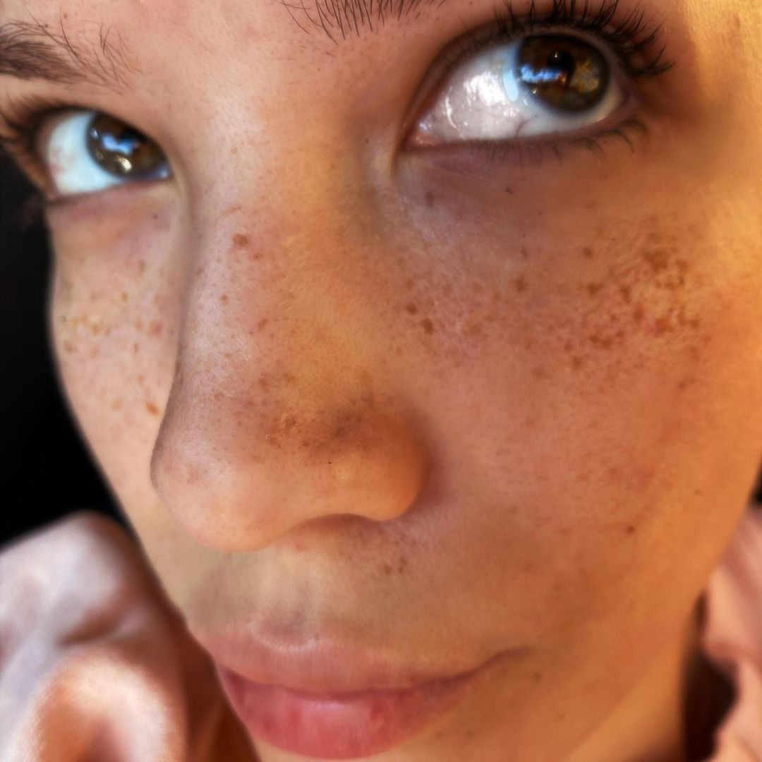 Thinking about @halsey and her freckles...hbu? 💛