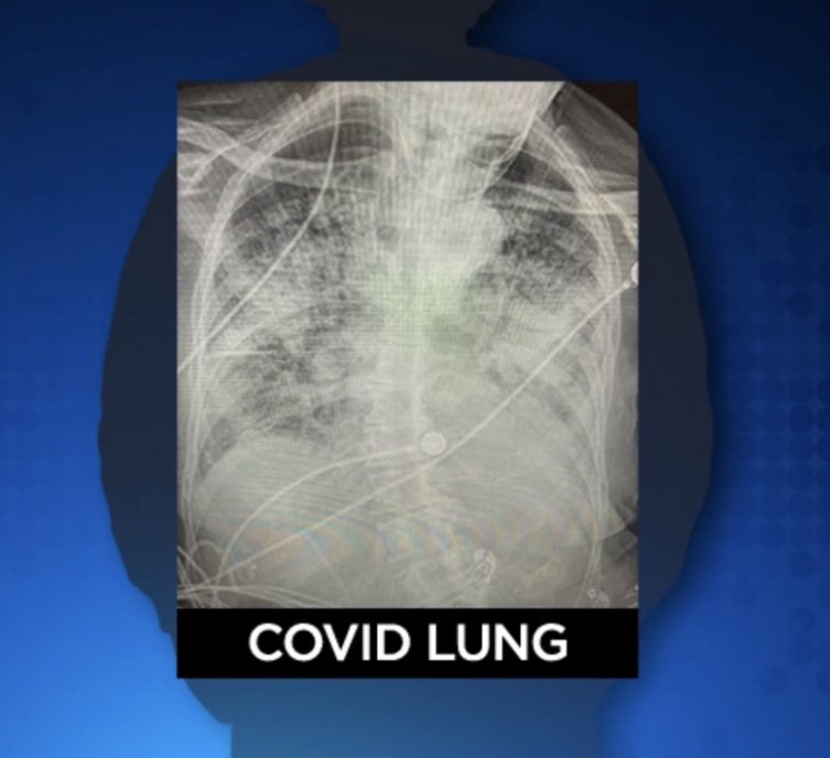 """Psssst... pass it on:   ➡️ COVID LUNG is worse than smoker's lung.   """"Post-COVID lungs look worse than any type of terrible smoker's lung we've ever seen. And they collapse. And they clot off. And the shortness of breath lingers"""" says Dr @BKendallMD. #COVID19"""