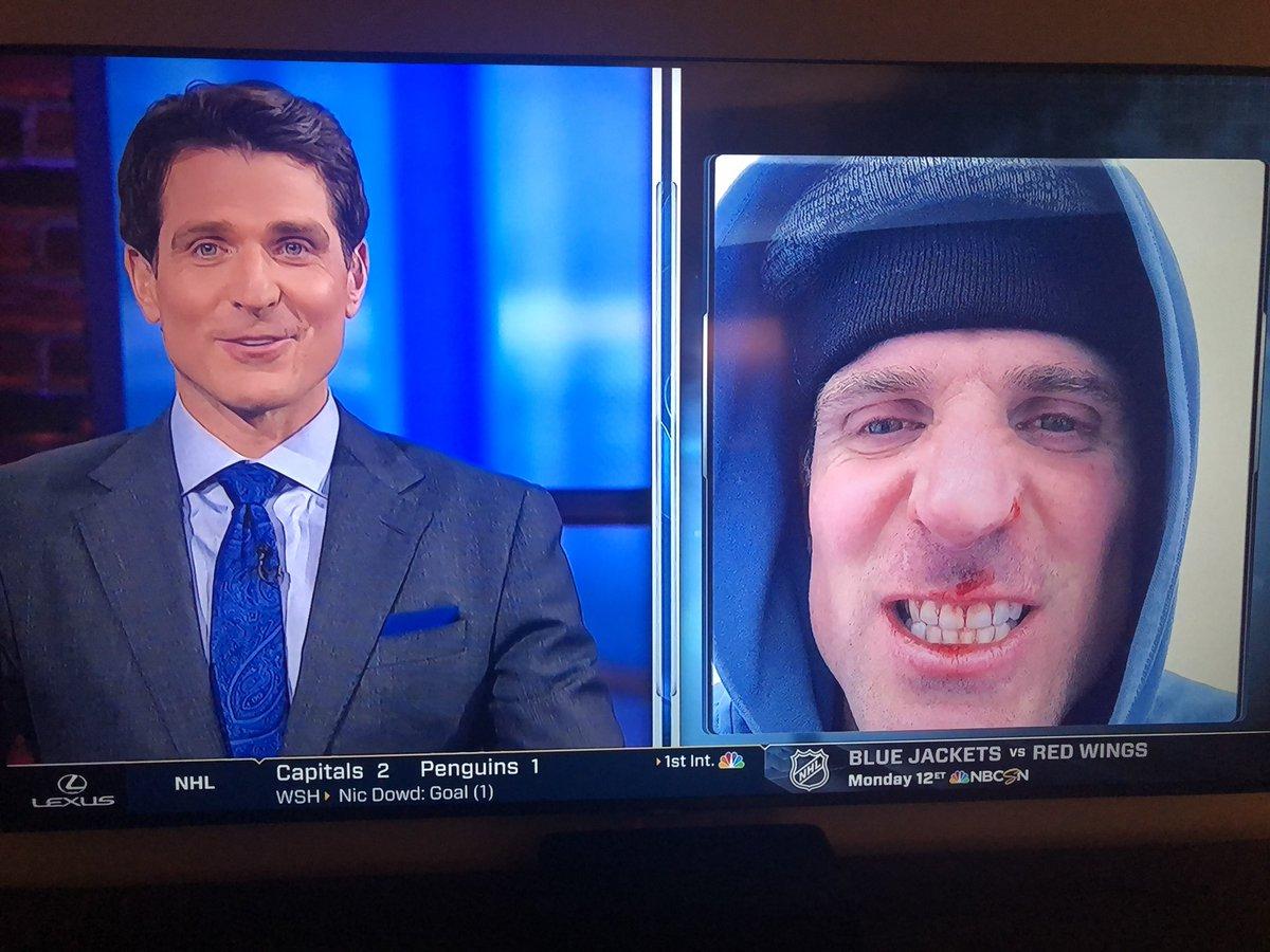 True gamer.. @10PSharp Sharpy playing hurt today on @NHLonNBCSports after a roller blades spill