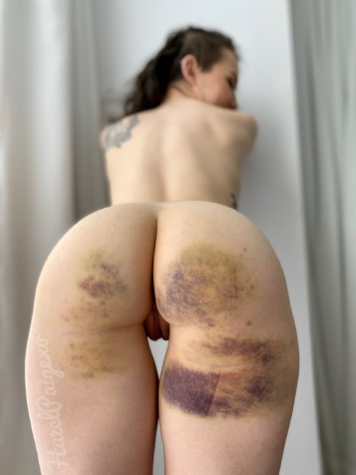 I miss bruises like this 😞 https://t.co/RhjwvX2ibA