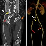 Image for the Tweet beginning: Further evidence of arterial thrombosis
