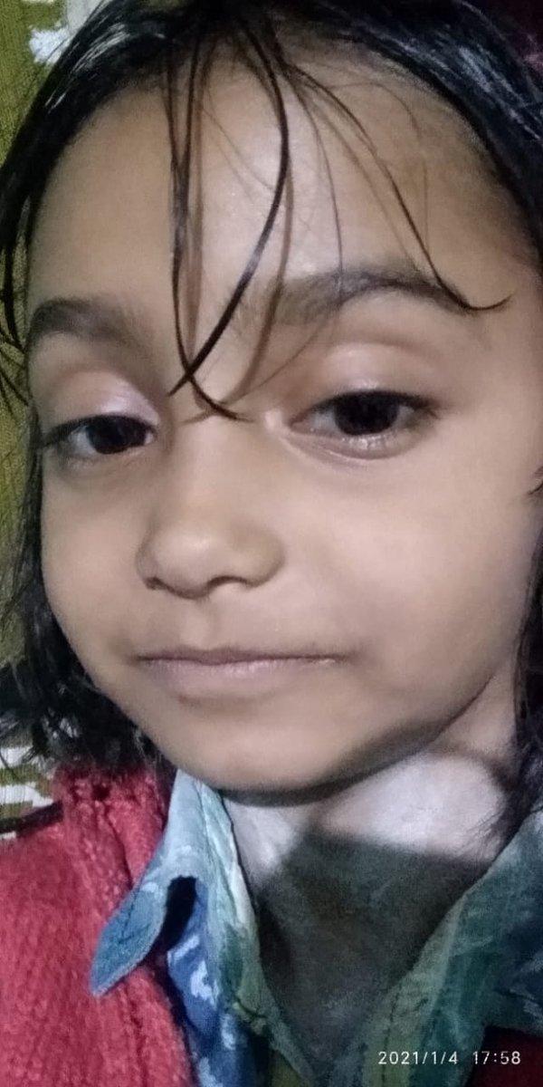 @SonuSood सर ये बच्ची का दिल मे छेद हैं, सर Please सर हेल्प कीजिए, Doctor ने बोला हैं operation करना पड़ेगा सर please Sergery करवा दीजिए, ये बच्ची का लाइफ बच जायेगा, Family हॉस्पिटल का चक्कर काट कर थक चुका हैं, 😔🙏🙏🙏 @GovindAgarwal_ @sumita_salve https://t.co/wAaBqPlbQ8