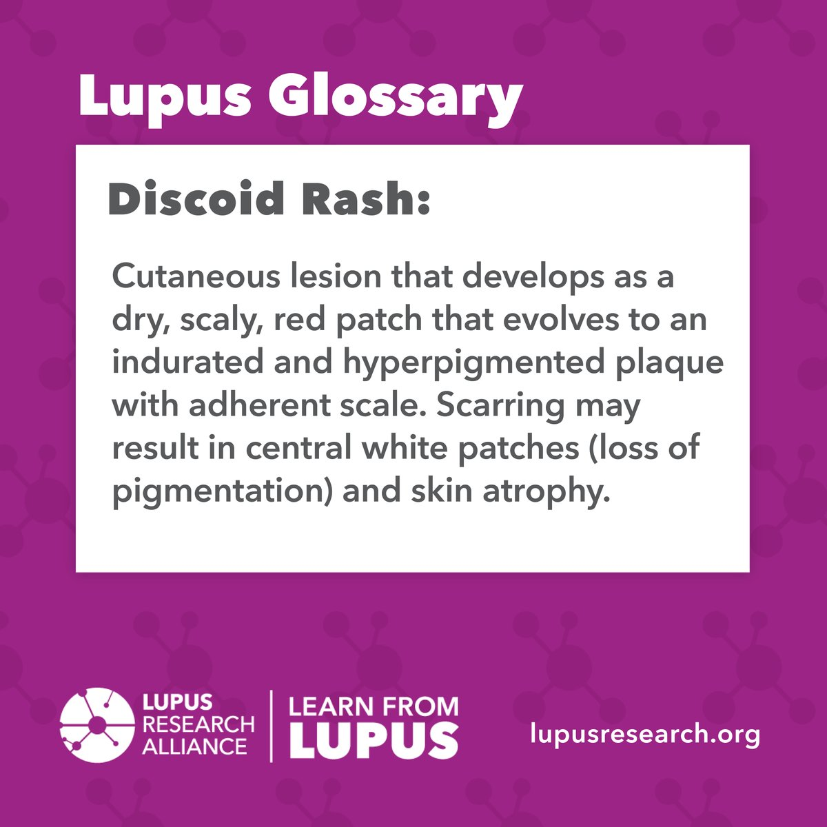 Learn more lupus-related terms in our #LupusGlossary at   #lupus #lupusresearch #SLE #autoimmune #educatelupus #glossaryterms #lupusterms #learnfromlupus