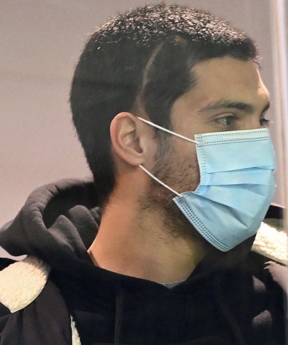 RAUL JIMENEZ showed off his huge head scar as he watched Wolves take on Everton from stands on Tuesday.  It is not yet known when the striker will be able to safely return to action for Wolves. https://t.co/h09mz0kDoU