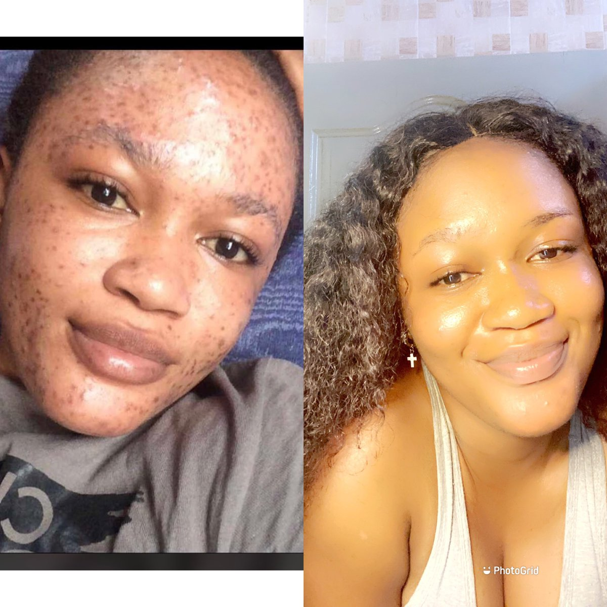 CLIENTS REVIEW:I heal and enhance the skin with organic products only. Dm me if you battling with any skin care problems ❤️.Kindly retweet💞 #BLM #BlackOwned #BlackOwnedBusiness #BlackOwnedBusinesses #Trending #TrendingTopics #GirlsTalkZA #handmade #nobleaching #DIY #ExploreMore