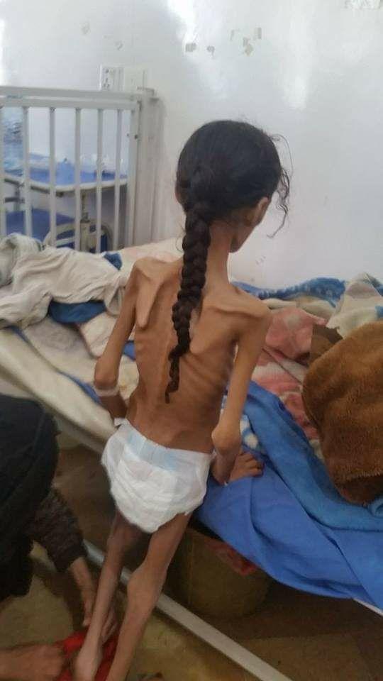 ماذا فعلتم في بلقيس ؟ ماذا فعلتم في ملكة اليمن ؟