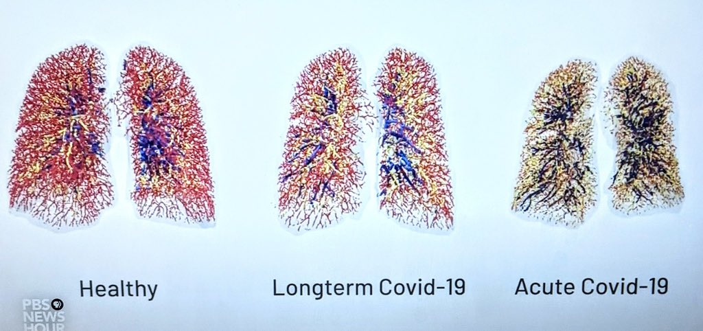 The photo on the left are healthy lungs. You can see all the colorful blood vessels. The center pic is actually *my* lungs. As a long hauler, I have less blood vessels than pre-covid. We don't know if they will come back. The right are lungs of someone who passed away from covid.
