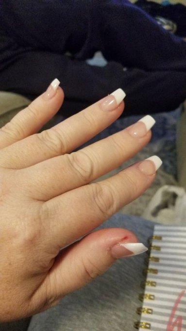 1 pic. Got my mani/pedi! She hurt my thumb, but I love the nails. I feel like myself again. 😊  If anyone
