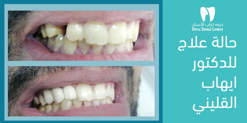 صورة لحالة قبل و بعد للدكتور ايهاب القليني ⬇️⬇️⬇️⬇️  لا تحلم بابتسامة جميلة..احصل عليها! 😁 #dima_dental  #doctor #teeth #saudi #dental #dentist #smile #riyadh #ديمة_سنتر #ديمة_دانتل #طب_اسنان #اسنان  #الرياض #ابتسامة