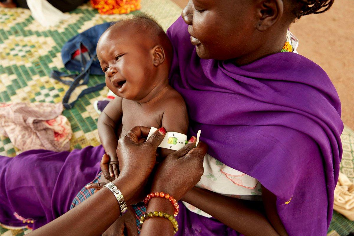 A 9 mois, Akot souffrait de malnutrition aiguë sévère lorsqu'il a croisé le chemin des équipes UNICEF. Pris en charge, il a retrouvé l'appétit et l'avenir s'offre de nouveau à lui !   En 2021, prenez la résolution de sauver et protéger chaque enfant. ▶