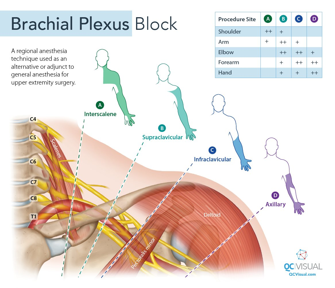 A brachial plexus block is a regional anesthesia technique used for upper extremity surgery 💪. Check out this #diagram I made to summarize the anatomy!   #infographic #patienteducation #scicomm #illustration #design #sciart #medicalart #brachialplexus #anatomy #healthcaredesign