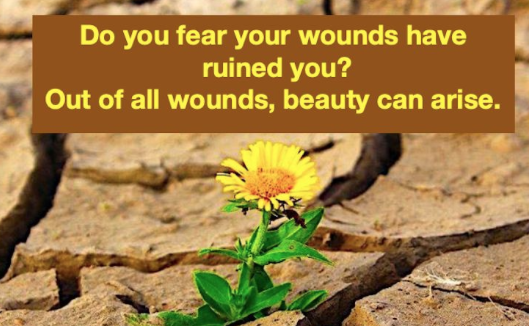 Monday Musings - It can feel overwhelming but there is great beauty and love underneath your wounds. Keep healing your wounds! #selflove #empowerment #PositiveVibes  #inspiration #Mindfulness #mondaythoughts #MondayMotivation #MondayWisdom