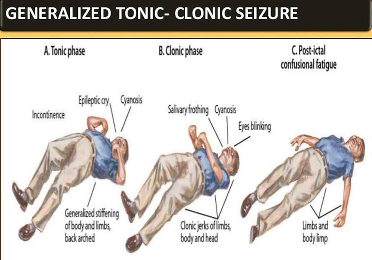 What is a tonic-clonic seizure?    Have any questions? Contact us for more  details.  . . . . . . #pharmaserve #pharmablog #love #instagood #photooftheday #fashion #beautiful #happy #cute #tbt #like4like #followme #picoftheday