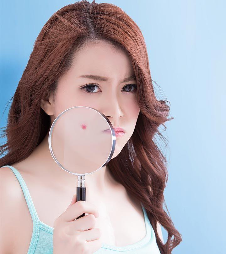 The best acne treatment for teens   @inkAkbar #beautygirls  #BeautySecrets