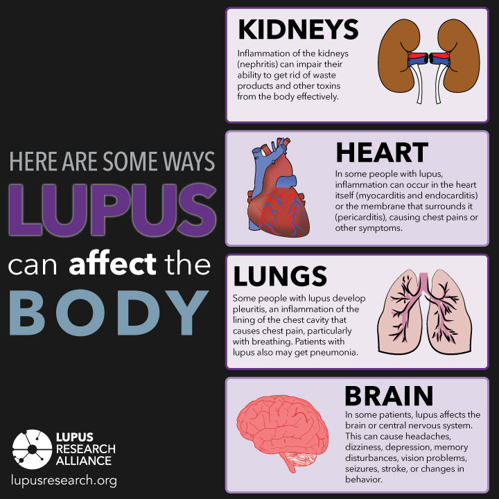 Just how seriously a body system is affected by #lupus varies from person to person.   Learn more about lupus symptoms by visiting: .