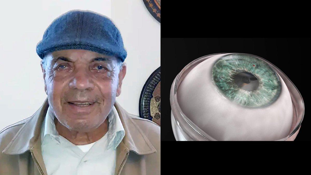 أفيخاي يغرد : انجاز إسرائيلي جديد يعيد النظر لرجل كفيف عبر زراعة قرنية عين اصطناعية وهي عملية الأولى من نوعها تحمل…